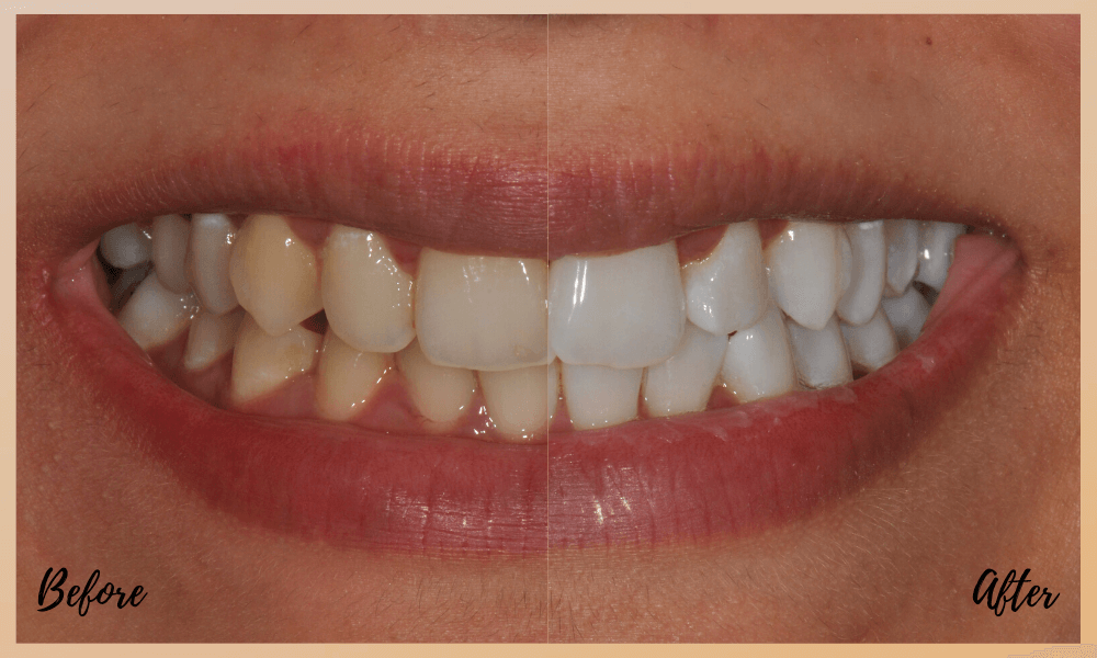 a whiter smile in only two weeks at dental on the banks