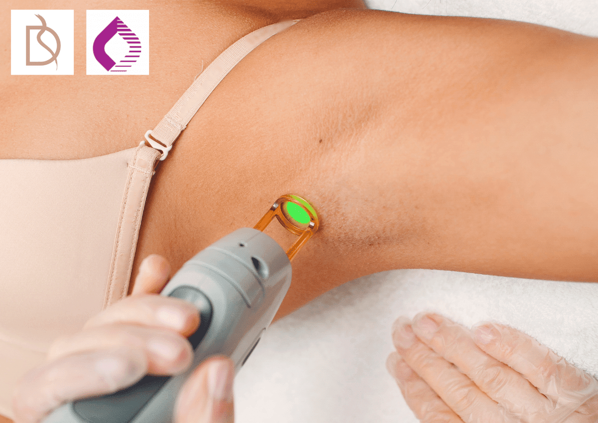 laser hair removal in poole