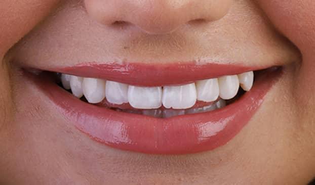teeth whitening thumb