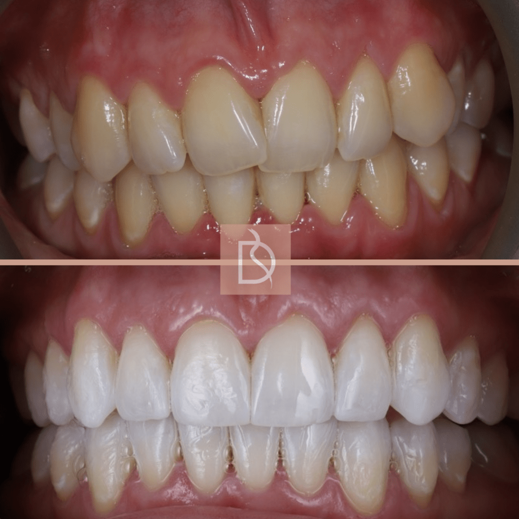 invisalign in poole before and after showing teeth after braces and teeth whitening