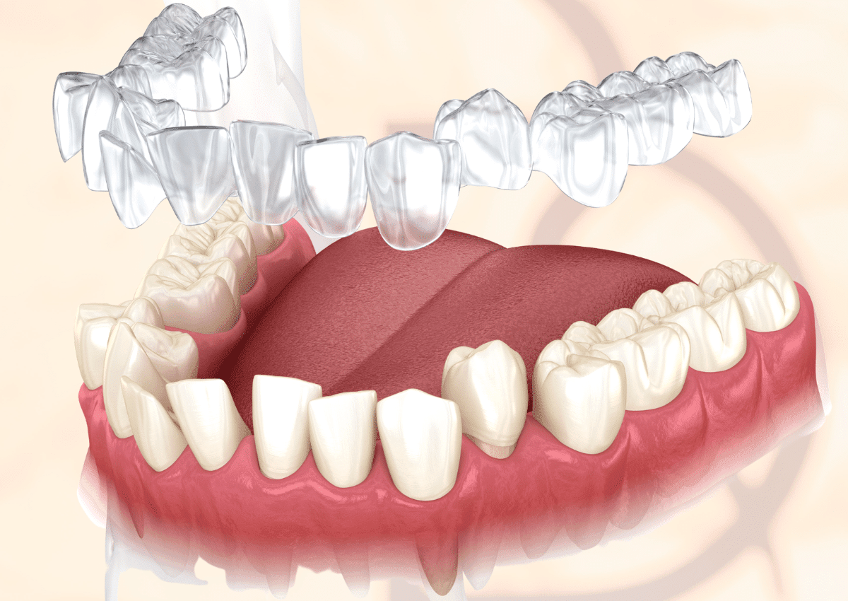 dental on the banks correcting bite function and jaw misalignment with invisalign