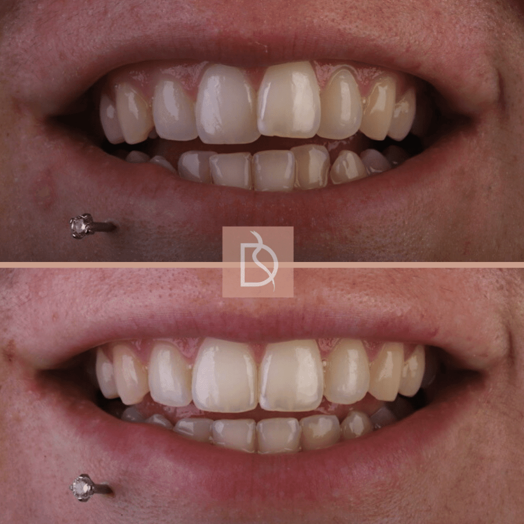our most popular dental treatments dental on the banks invisalign before and after