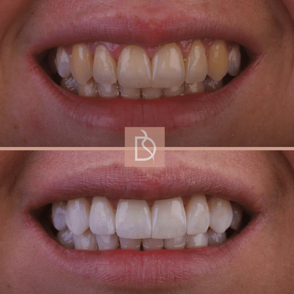 our most popular dental treatments dental on the banks teeth whitening before and after