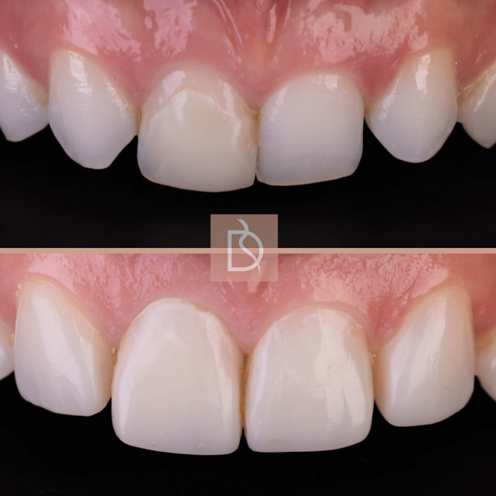 our most popular dental treatments dental on the banks composite bondingbefore and after