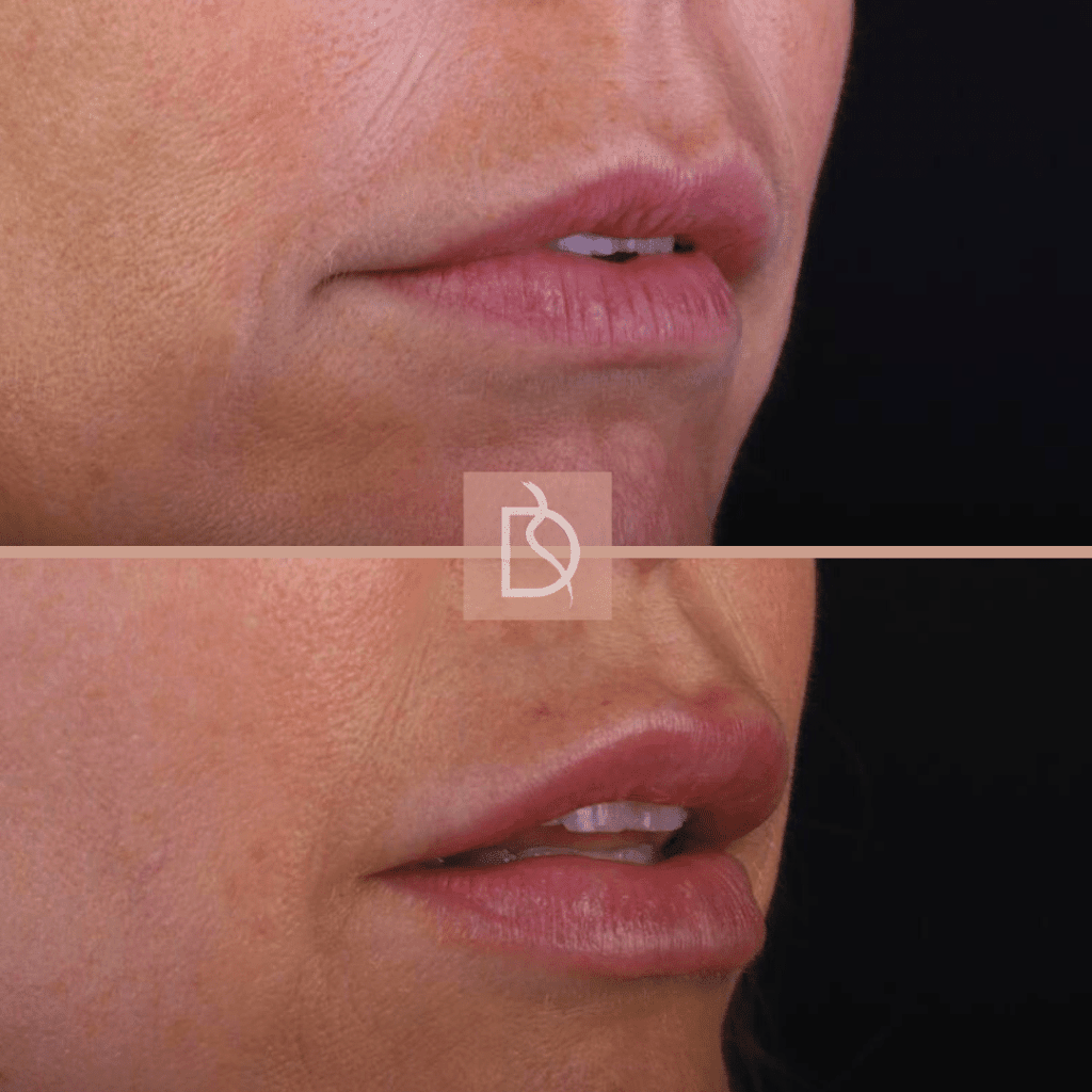 aesthetic treatments in bournemouth lip fillers before and after dental on the banks